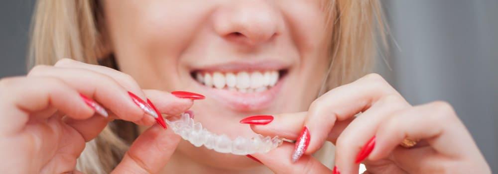 Элайнеры для выравнивания зубов invisalign